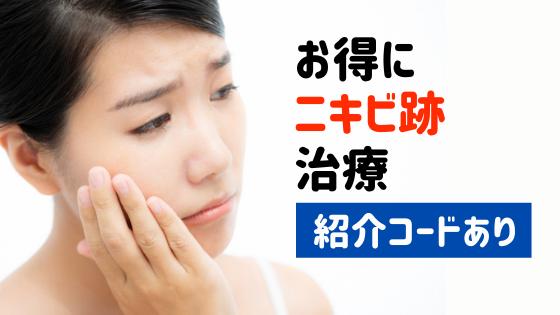 sbc,ニキビ,悩み,アイキャッチ